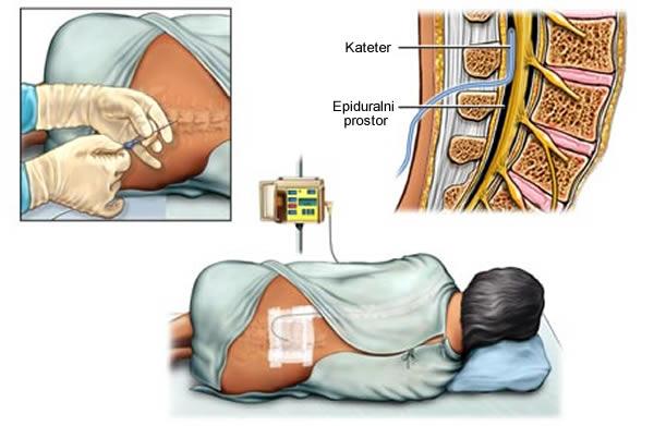 epiduralna anestezija porodjaj