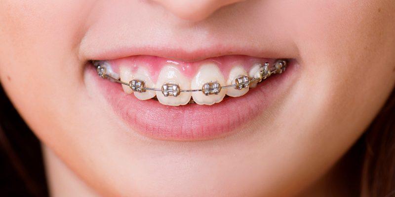 sta ako djeca nece da nose aparatic za zube