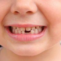 mlijecni zubi kod djece