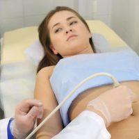 miomi u trudnoci