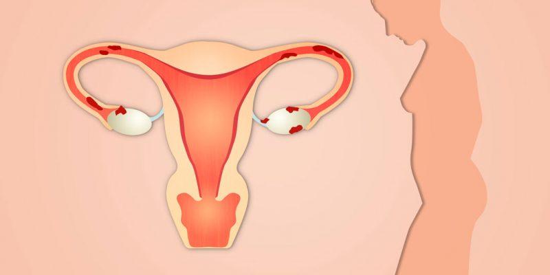 endometrioza uzroci, simptomi i liječenje