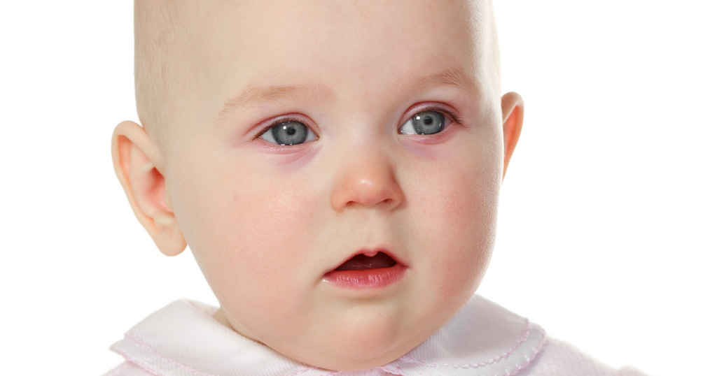 virusni konjuktivitis kod djece