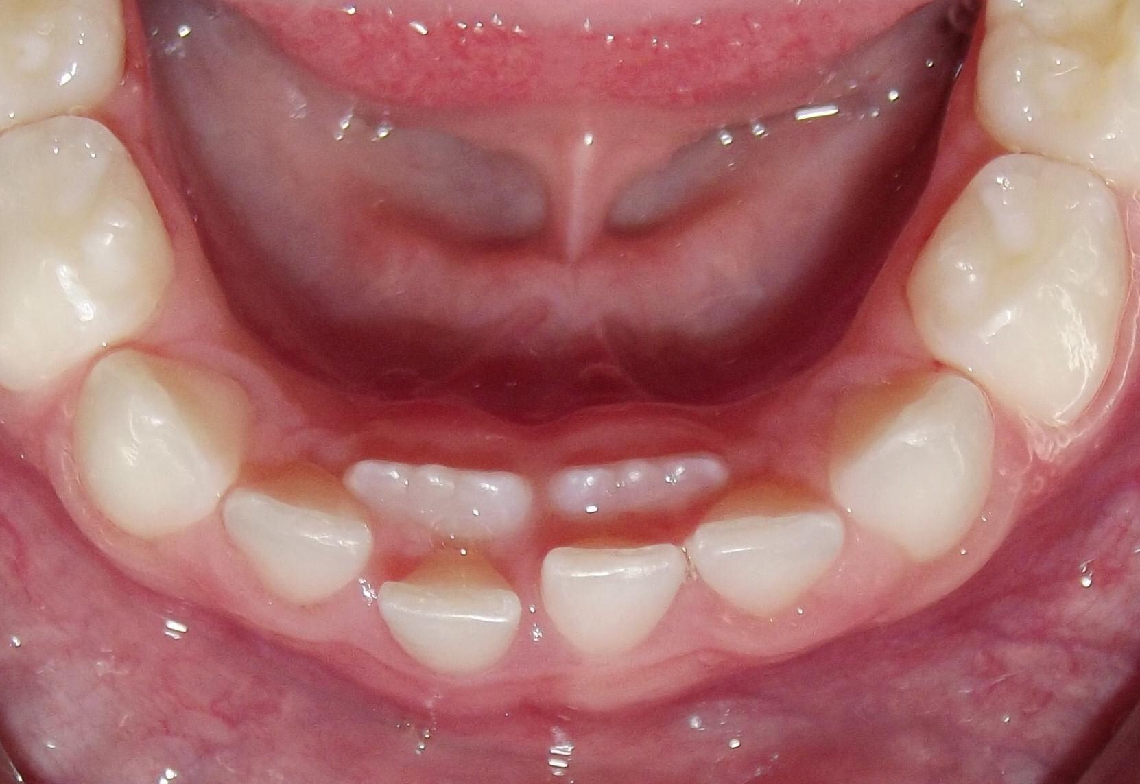 Rast stalnih prije ispadanja mlijecnih zuba